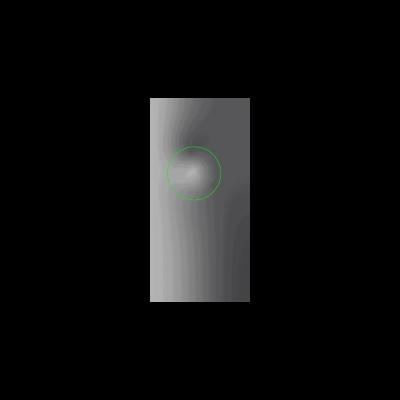 MV.EYE-MS1-Dellen